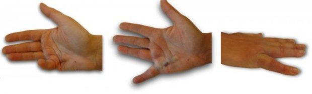 Dłoń przed i na następny dzień po podaniu preparatu Xiapex.