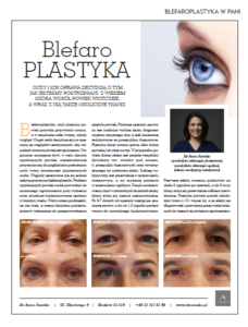blefaroplastyka-dr-Anna-Aseńko-PANI