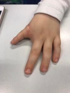Dłoń po zabiegu