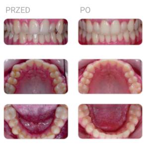 nakładki ortodontyczne